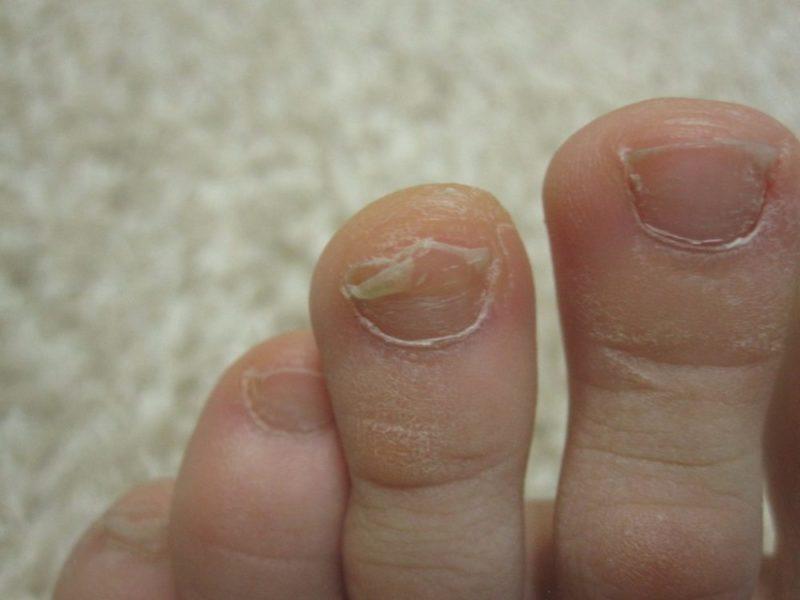 Начальная стадия микоза ногтей