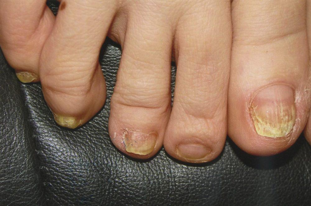 Керосин против грибка ногтей - Лечение грибка