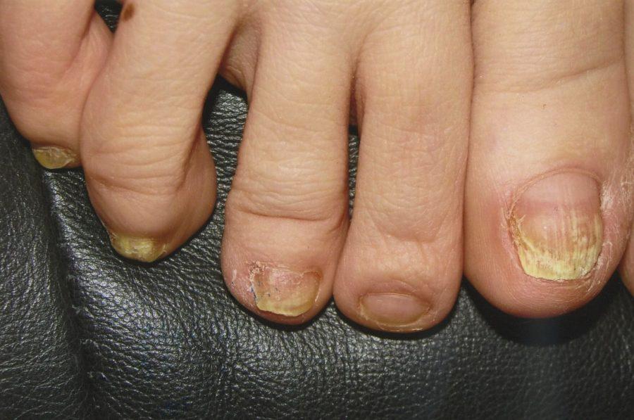 Нога, пораженная грибком