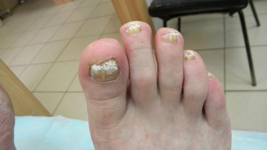 Используем чистотел от грибка ногтей на ногах. Лучшие рецепты