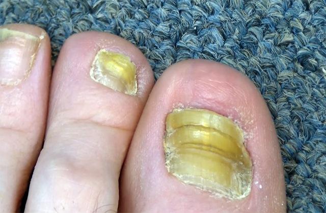 Заразен ли грибок ногтей и как он передается?