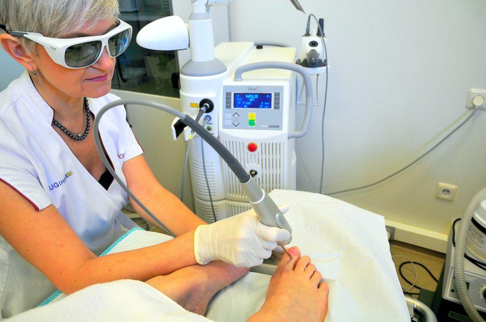 Лазерное лечение грибка