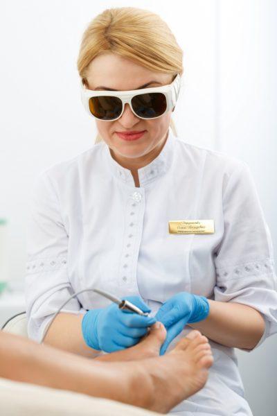 Лечение онихомикоза лазером