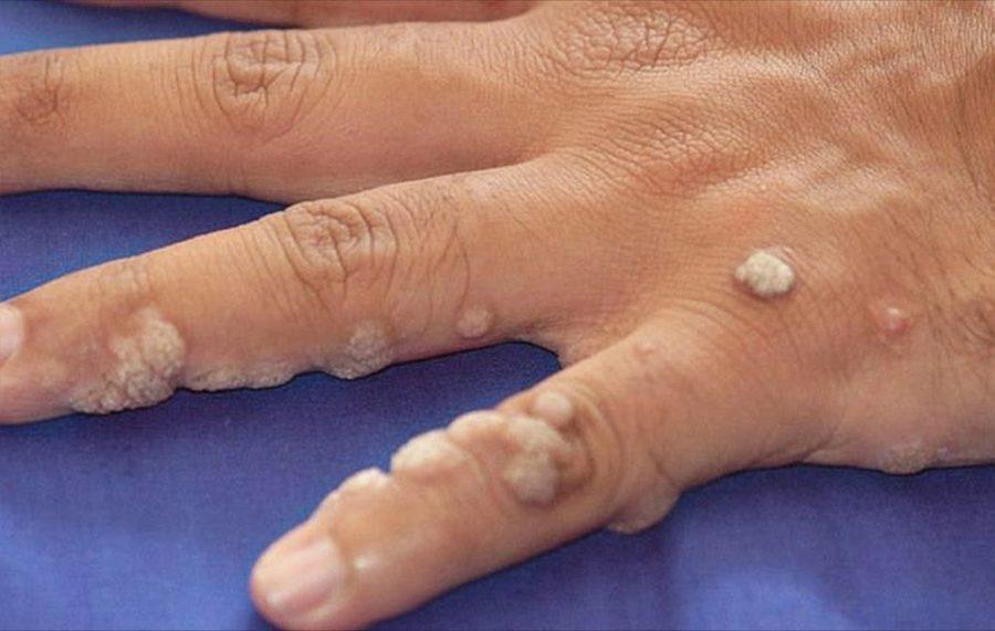 Обилие бородавок на пальцах