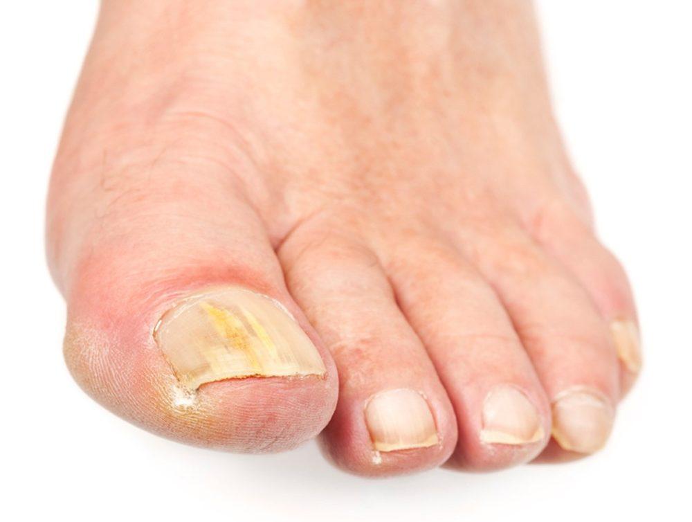 Убить грибок ногтей белизной