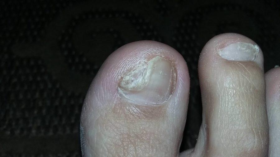 Поврежденный грибком ноготь