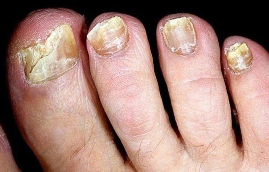 Разрушение ногтей грибком