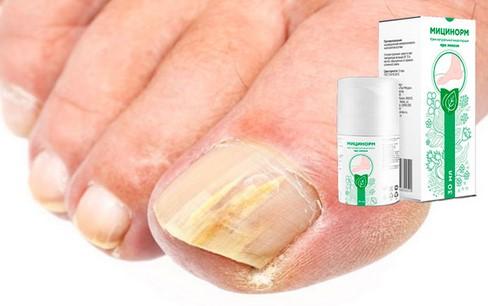 Грибок ногтя и стопы