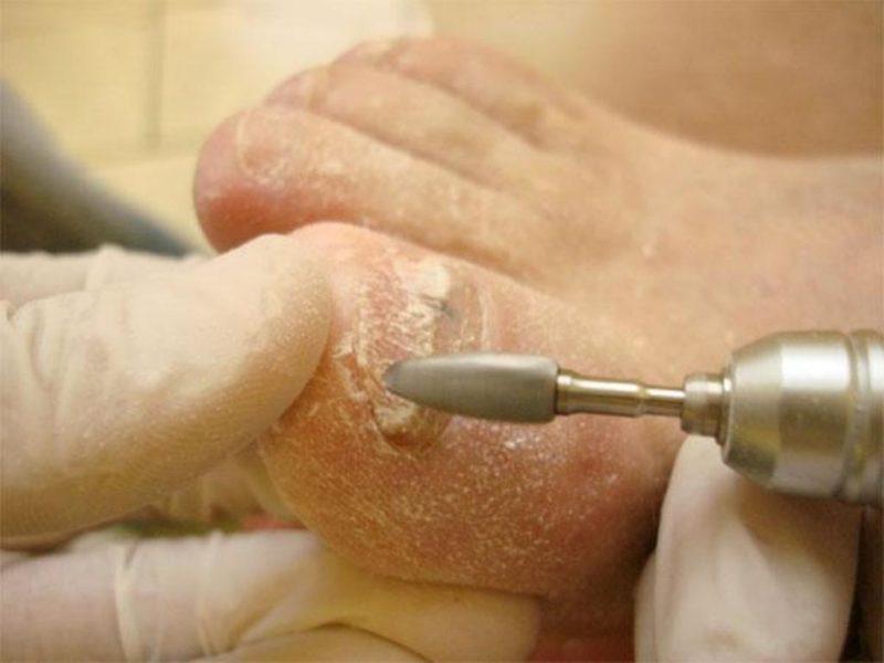 Снятие мягкого слоя больного ногтя