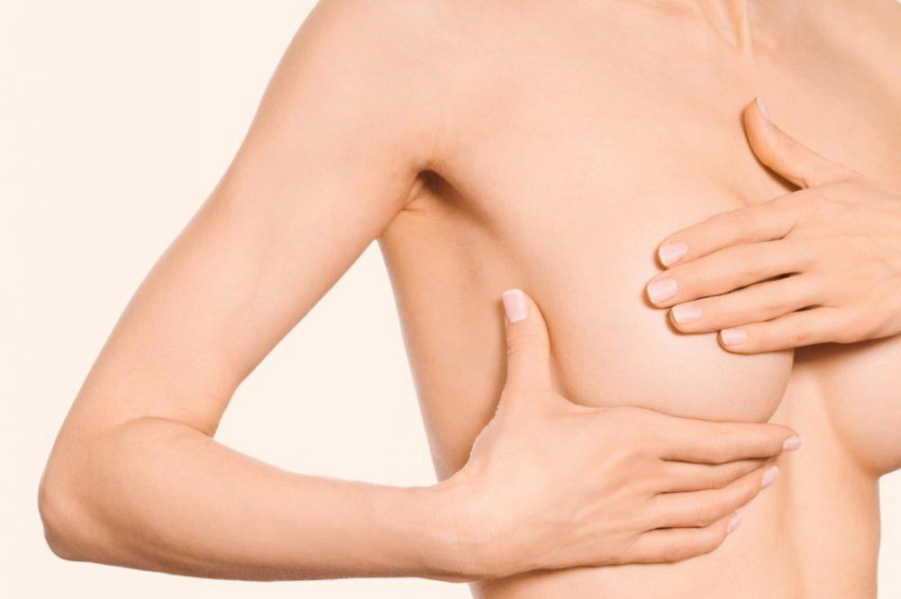 Папилломы под грудью – причины