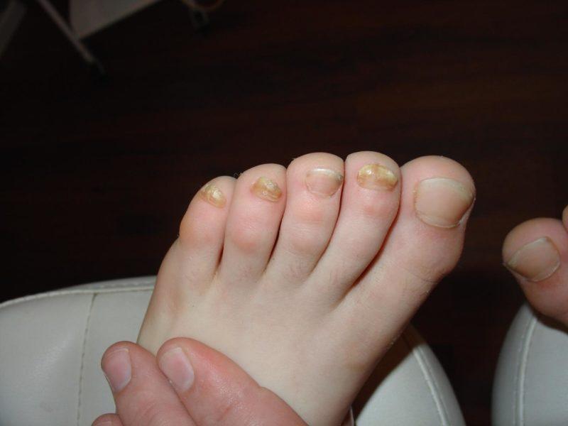 Лечение ногтевого грибка доместосом - О грибке ногтей