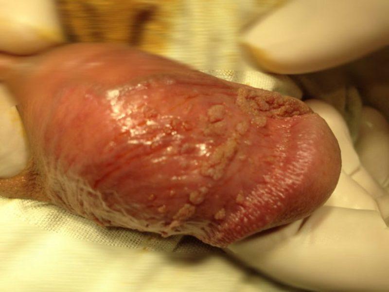Папилломы на пенисе