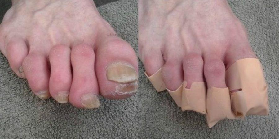 Пластырь на ногтях