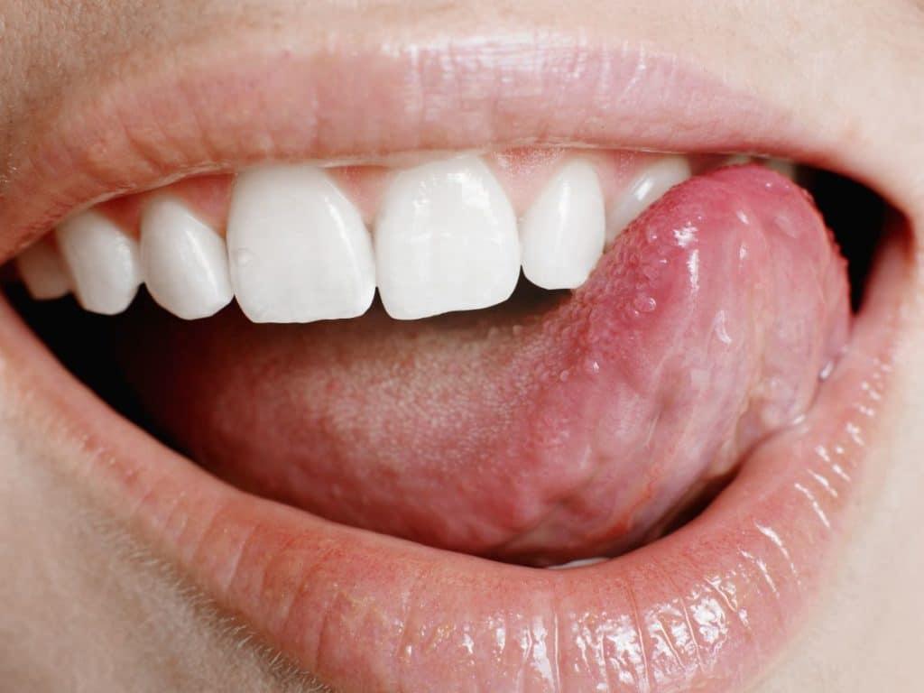 Папиллома на языке : фото и лечение