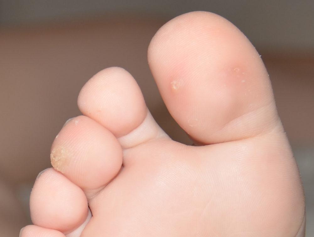 Шипицы на пальцах ног