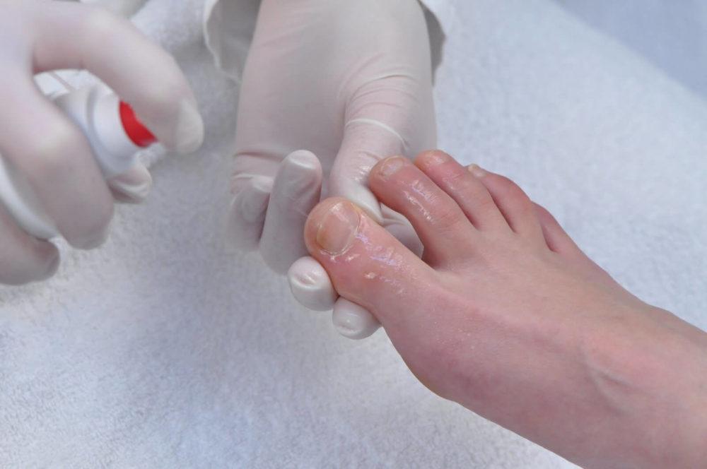 Эффективные средства для размягчения ногтей при грибке
