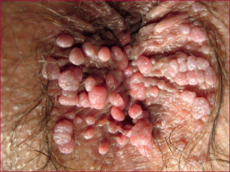 Аногенитальные кондиломы