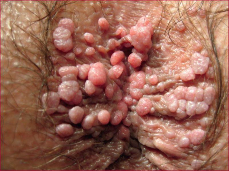 Кондиломы в гинекологии