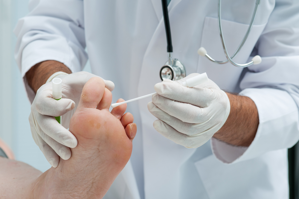 Как избавиться от грибка между ног