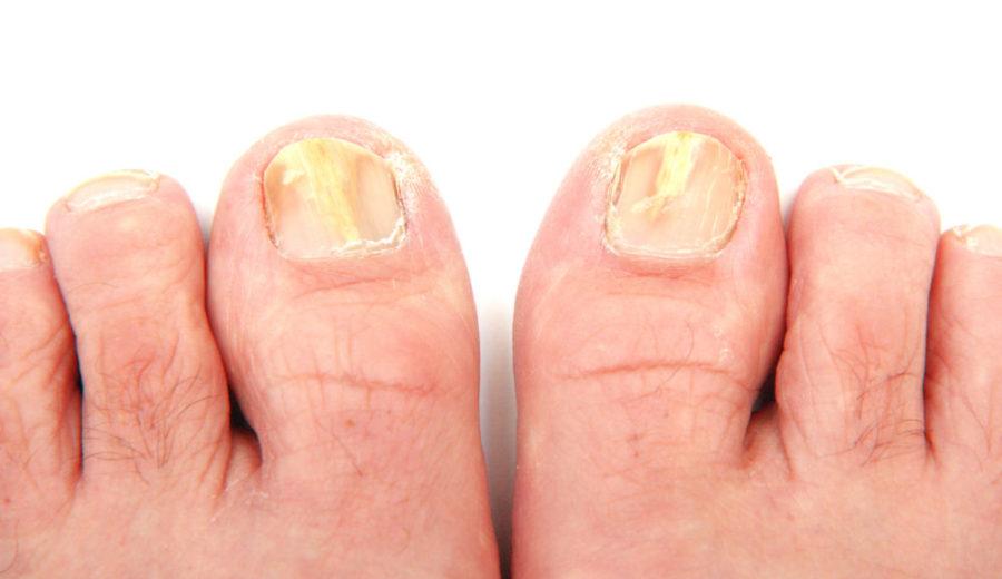 Микоз ногтевых пластин