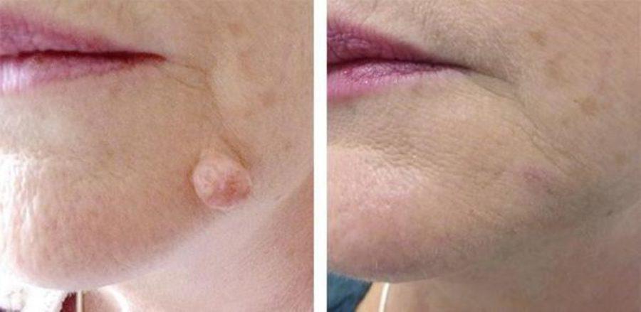 Удаленная бородавка: до и после